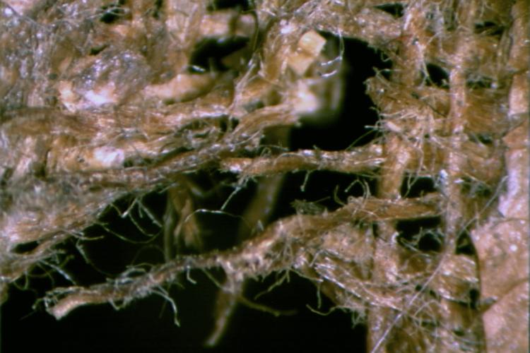 Lacerazione-stereomicroscop